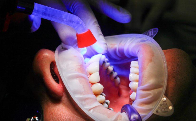 Zły sposób żywienia się to większe niedostatki w jamie ustnej oraz dodatkowo ich zgubę